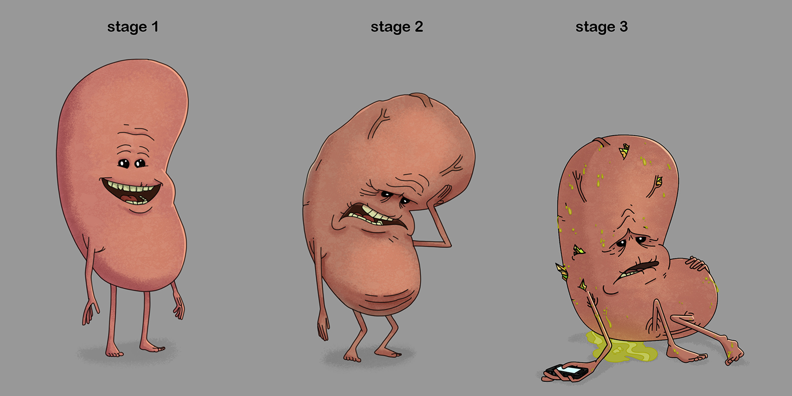 Different Stages of Kidney
